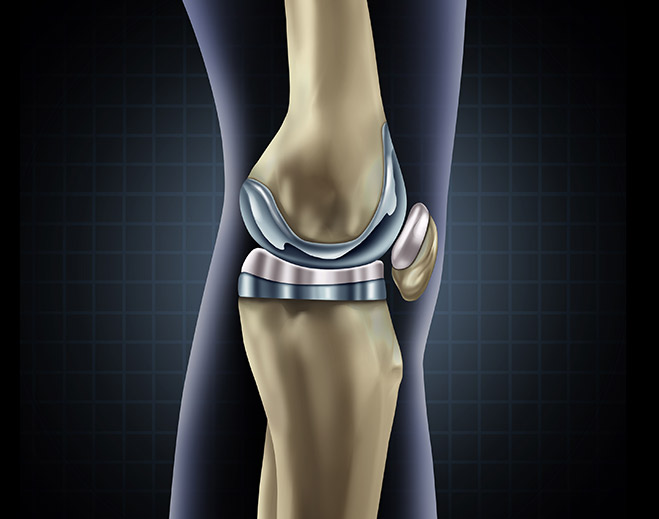 orthopedics-knee-replacement